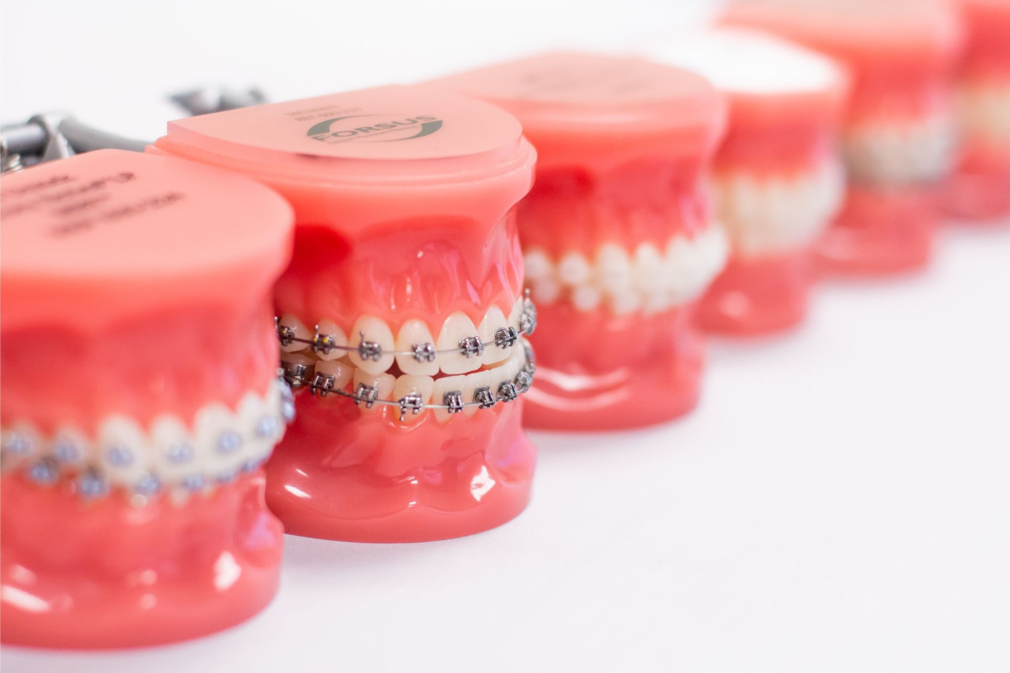 DIY orthodontic treatments